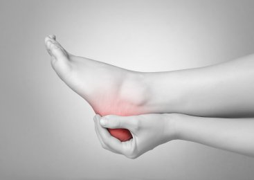 Aching Arches: Consequences of Neglecting Plantar Fasciitis