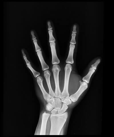 X-ray of bones of hand